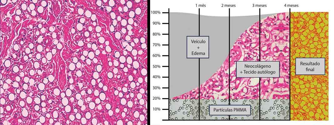 grafico de tempo por porcentagem mostra o estimulo de colageno de 20% de pmma para 80% de tecido do próprio paciente em 4 meses